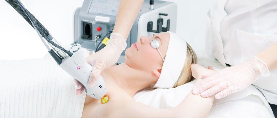 lasersko-uklanjanje-dlaka